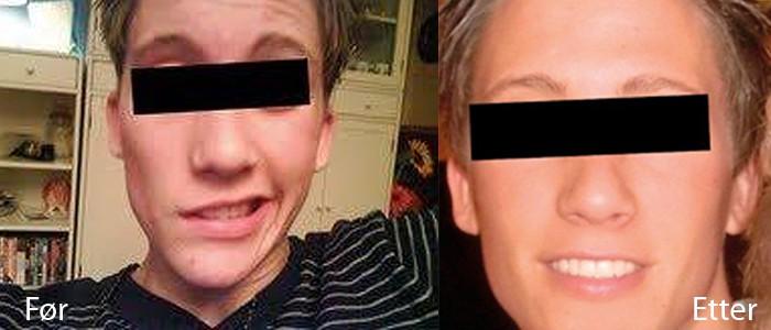 Facialisparese/ ansiktslammelse